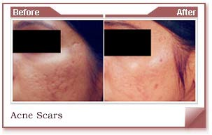acne scar and spots removal