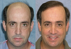 Robotic hair Transplant in Delhi and FUE Hair Transplant