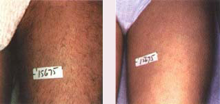 laser hair removal side effect