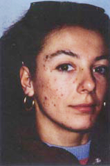 acne1-before.jpg (8895 bytes)