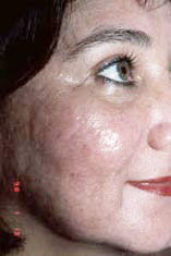 acne3-after.jpg (12599 bytes)