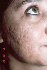 acne3-before.jpg (19844 bytes)