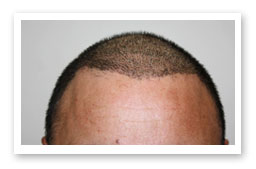 Consultation for Hair Loss